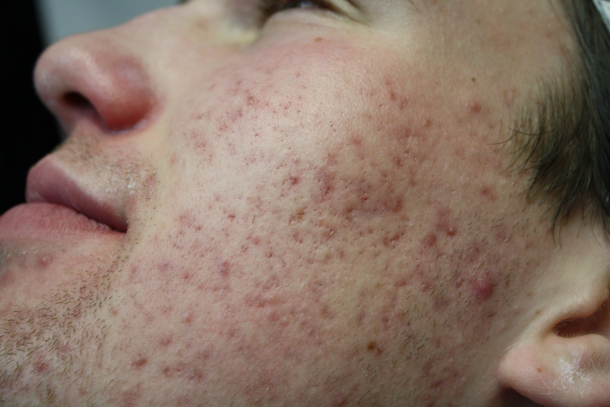 oestrogeen acne
